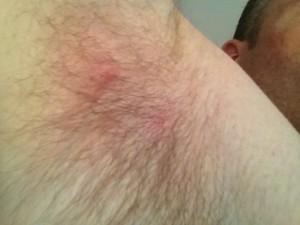 armpit-nodules