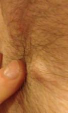 armpit-nodules-2